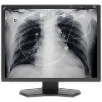 "NEC 21"" Grayscale 3-Megapixel Medical Diagnostic Monitor"