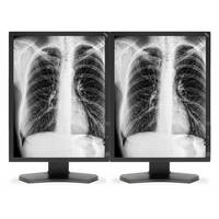 "NEC 2 x 21"" Grayscale Medical Diagnostic Monitors with Graphics Card"