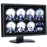 """NEC 24"""" Medical Review Display with Front Sensor"""