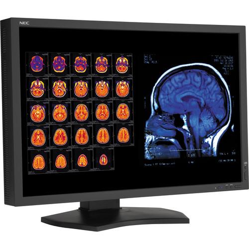 """NEC 30"""" Color 4-Megapixel Widescreen Medical Diagnostic Monitor"""