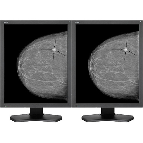 "NEC 21.3"" Grayscale 5-Megapixel Medical Diagnostic Monitors with Graphics Card (2)"