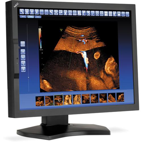 """NEC MD210C2 21.3"""" LED Backlit LCD Medical Monitor"""