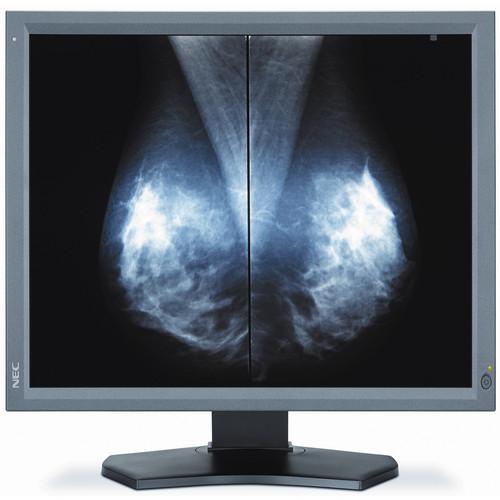 """NEC 21.3"""" 5 Mp Medical Diagnostic Display"""