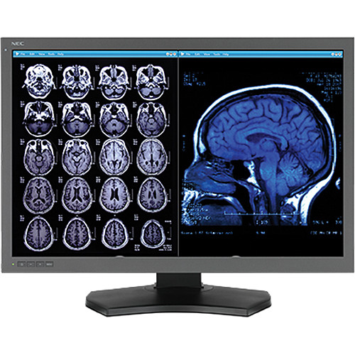 "NEC MD302C6-A1 30"" / 6 MP MultiSync Diagnostic Display with AMD FirePro W5100"