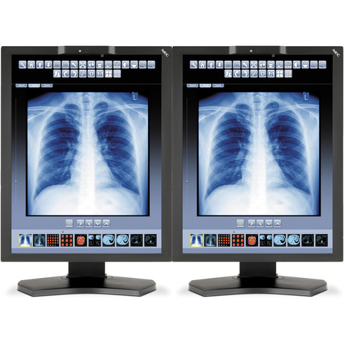 "NEC 21"" Color Medical Diagnostic Monitors with MDA-W5000 Graphics Card (2)"
